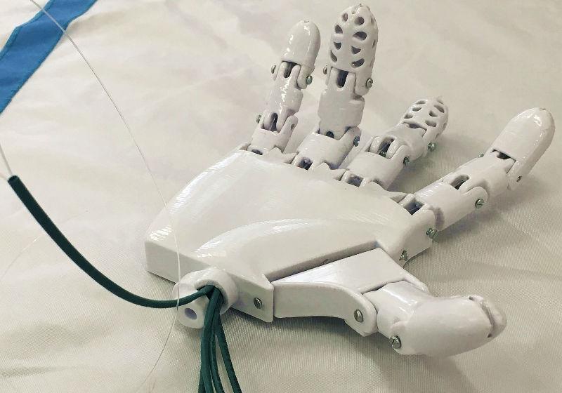 Estudantes mineiros criam prótese em 3D de baixo custo